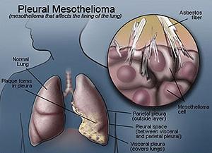 Pleural Mesothelioma - Mesothelioma Claims Info Website